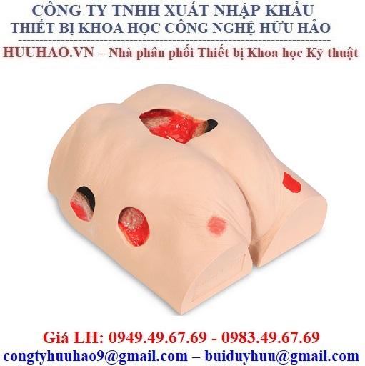 Mô hình chăm sóc vết thương mông Nasco SB46502U