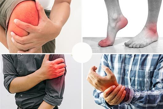 Viêm khớp phản ứng xảy ra khi một cơ quan nào đó trong cơ thể bị nhiễm khuẩn