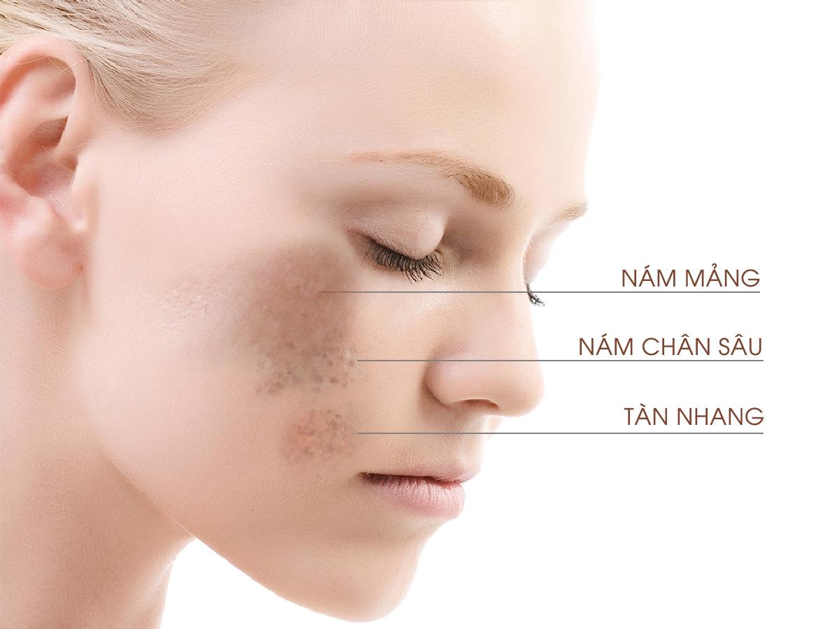 Image result for ngừa nám tàn nhang