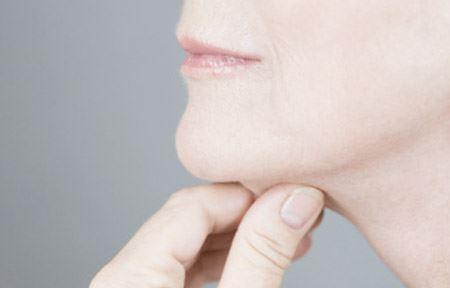 Một trong số các dấu hiệu của giảm thể tích da và da mặt bị chùng xuống dẫn đến tình trạng da không còn căng.