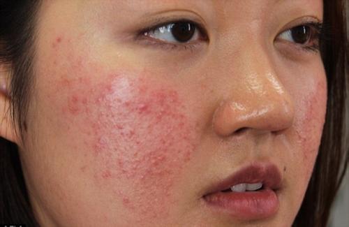 Làn da bị mẩn đỏ do không tẩy trang