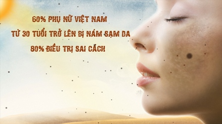 Sac-Xuan-tri-nam-da
