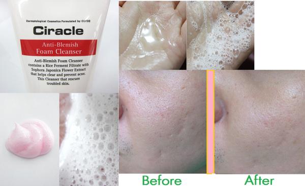 Sữa Rửa Mặt Ciracle Anti Blemish 150ml