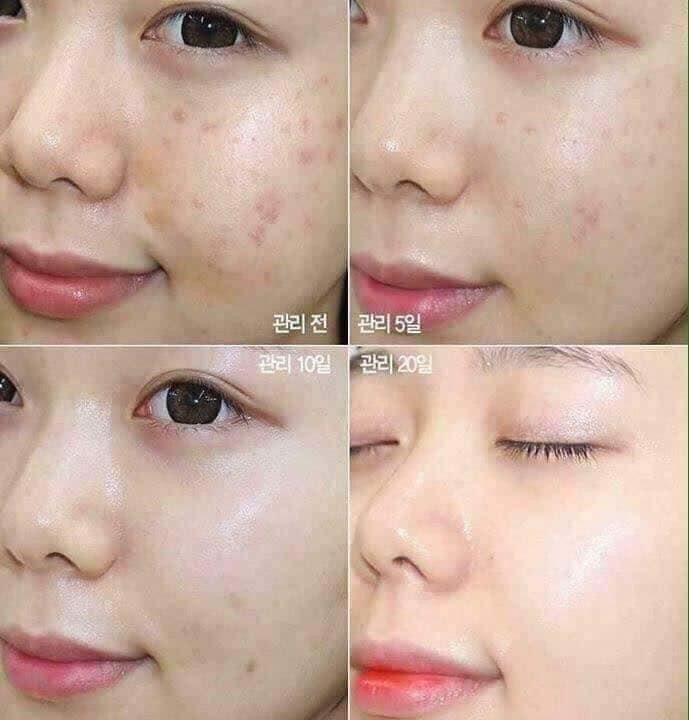 Tinh Chất Rau Má Skin1004 Madagascar Centella 55ml [mẫu mới]