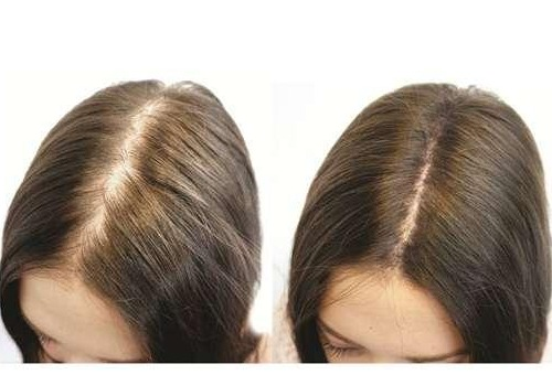 Tế bào gốc tự thân mọc tóc (PRP)