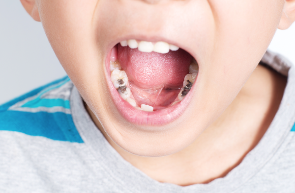 Sâu răng ở trẻ em: Hãy nhận biết và điều trị lúc mới chớm