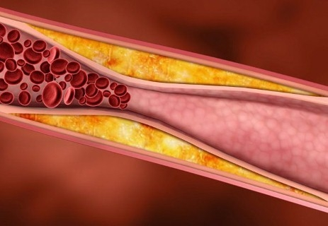 ATHEROSCLEROSIS & SOLUTIONS