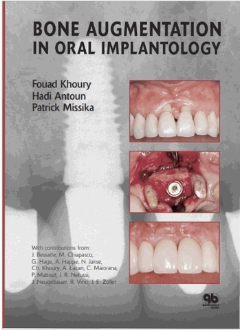 BONE AUGMENTATION IN ORAL IMPLANTOLOGY – FOUAD KHOURY,HADI ANTOUN,PATRICK MISSIKA – © 2007