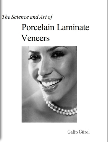 The science and Art of Porcelain Laminate Veneers (2003)