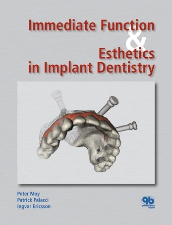 Immediate Function and Esthetics in Implant Dentistry - Quintessence Publishing_ 1 edition