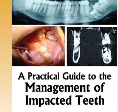 A practical guide to the management of impacted teeth jaypee brothers; 1 edition