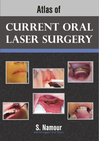 Book Atlas of Current Oral Laser Surgery