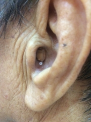 people-use-cic-hearing-aid
