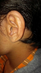 people-use-iic-hearing-aid