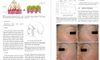 Botulinum Toxin for Asians-Springer Singapore (2017)